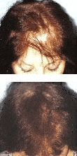 Female Laser Hair Loss Treatment - Pittsburgh, PA