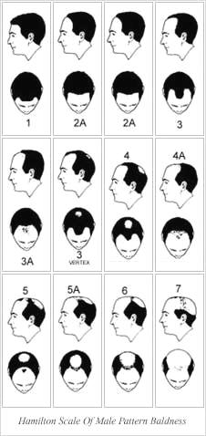 Hamilton Scale - Male Pattern Baldness